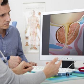 Uroloski pregled sa ultrazvukom testisa i urotrakta u Poliklinici Health Care na Dedinju