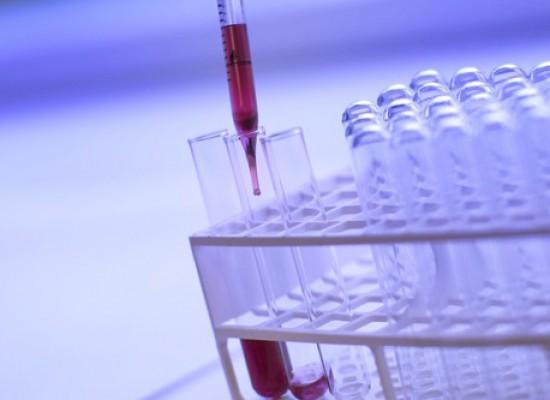 Analiza krvne slike  sa leukocitarnom formulom u CityLab laboratoriji po ceni od 200rsd!
