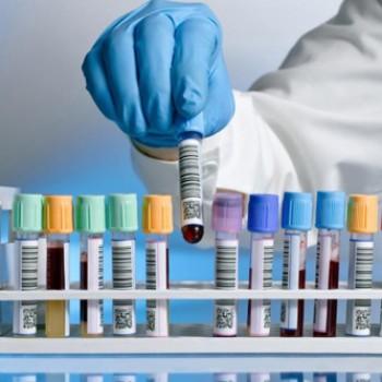 Analiza krvi i urina KKS, Urea, Kreatinin, Fe, Glu, Lipidogram, AST, ALT, Urin mikro