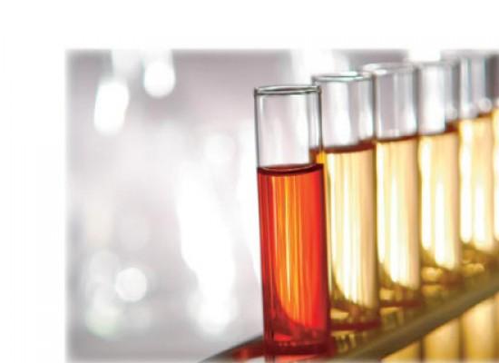 Kompletna laboratorijska analizu krvi i urina + besplatna konsultacija sa lekarom!